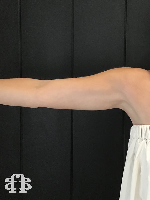 CoolSculpting Gallery - Patient 52660186 - Image 2