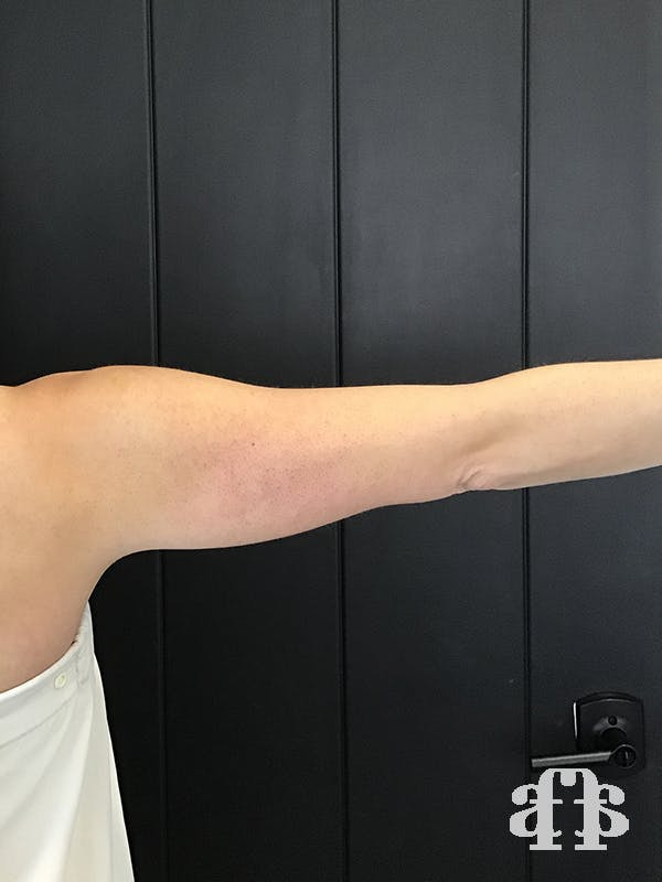 CoolSculpting Gallery - Patient 52660186 - Image 3