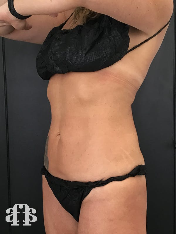 CoolSculpting Gallery - Patient 52660187 - Image 2