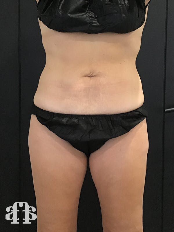 CoolSculpting Gallery - Patient 52660189 - Image 2