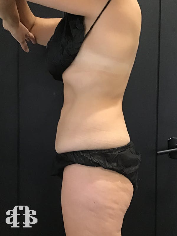 CoolSculpting Gallery - Patient 52660189 - Image 6