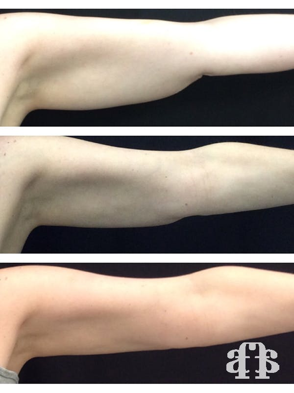 CoolSculpting Gallery - Patient 52660190 - Image 2