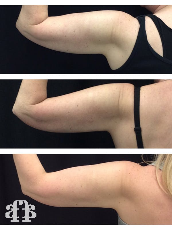 CoolSculpting Gallery - Patient 52660190 - Image 3