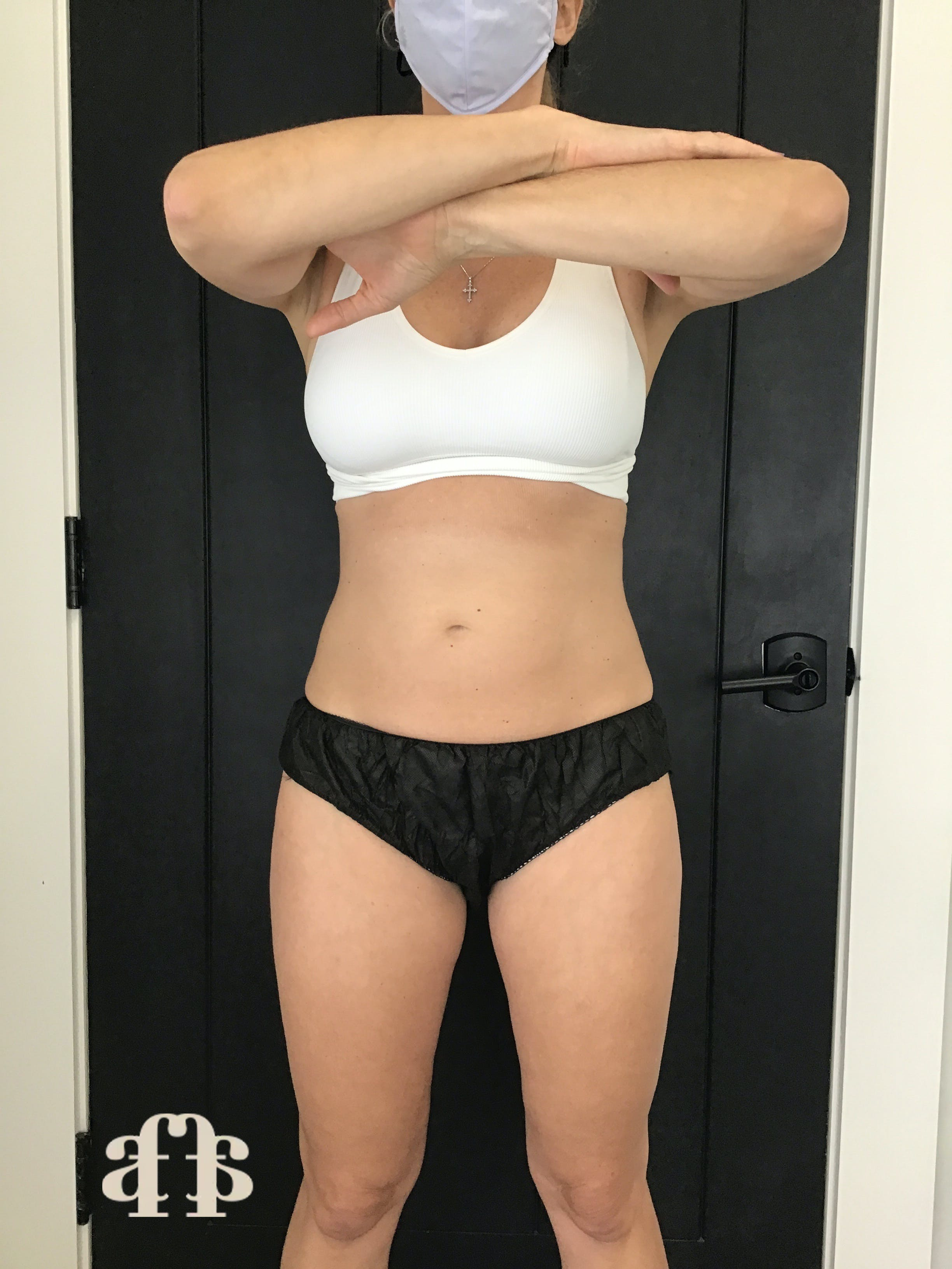 CoolSculpting Gallery - Patient 54046265 - Image 2