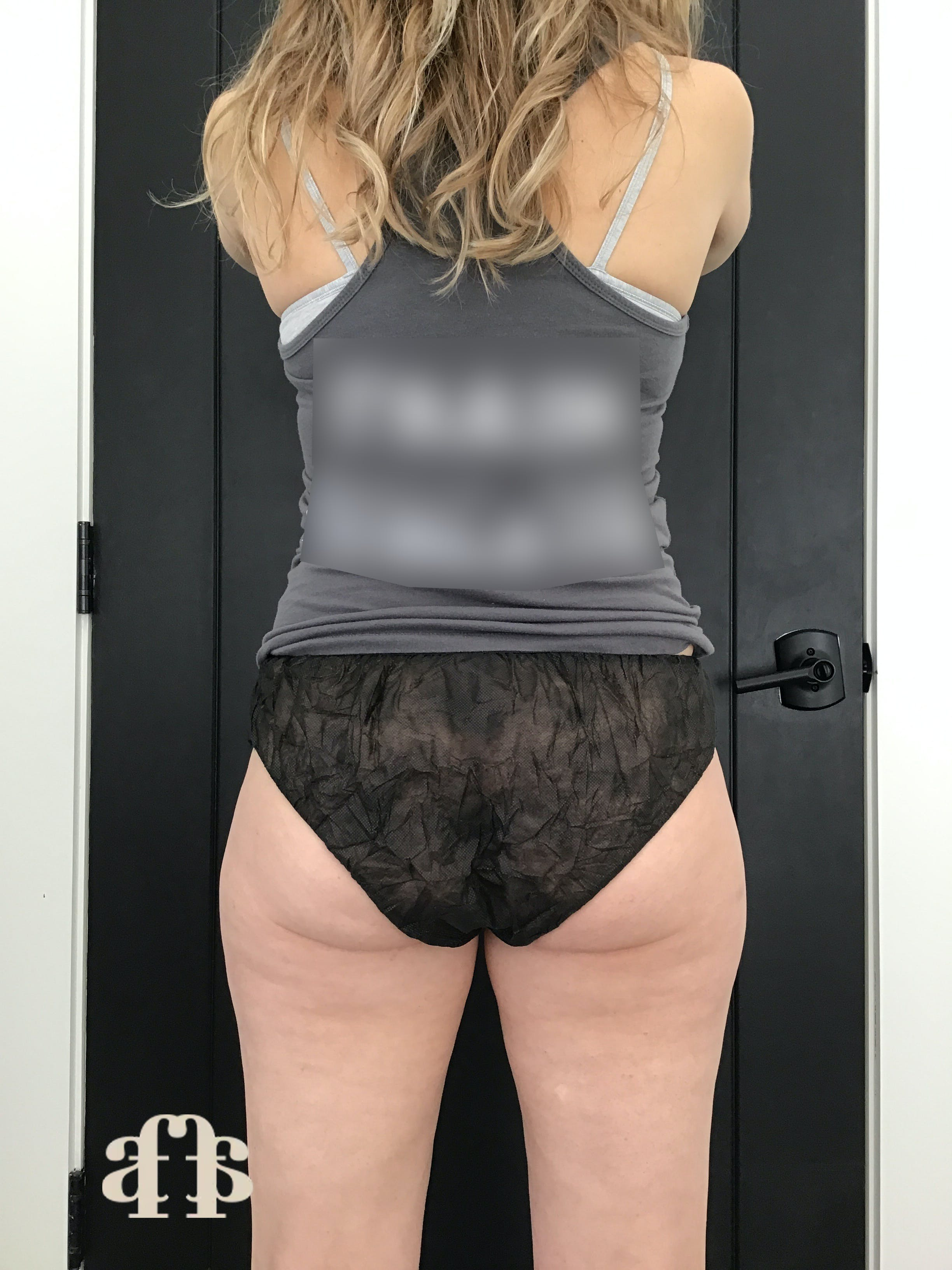 CoolSculpting Gallery - Patient 54046265 - Image 3