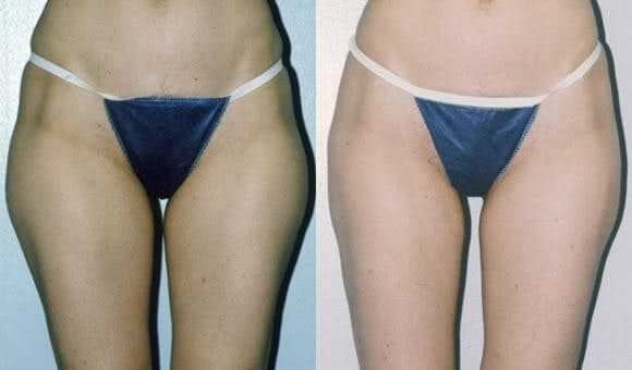 Liposuction Gallery - Patient 42063892 - Image 1