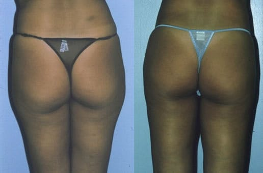 Liposuction Gallery - Patient 42063893 - Image 1