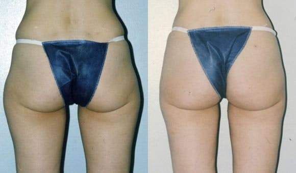 Liposuction Gallery - Patient 42063892 - Image 2