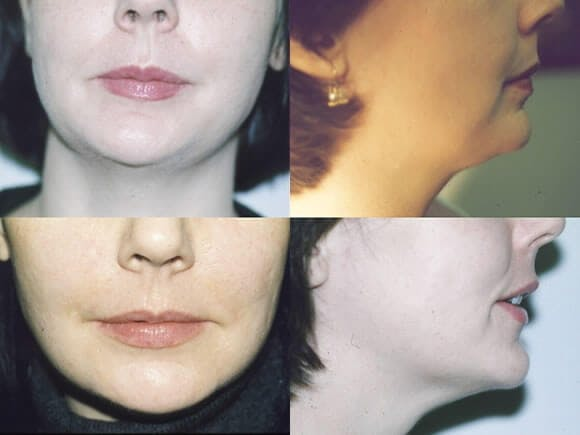 Liposuction Gallery - Patient 42063894 - Image 1