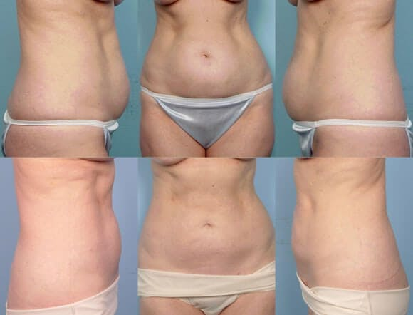 Liposuction Gallery - Patient 42063895 - Image 1
