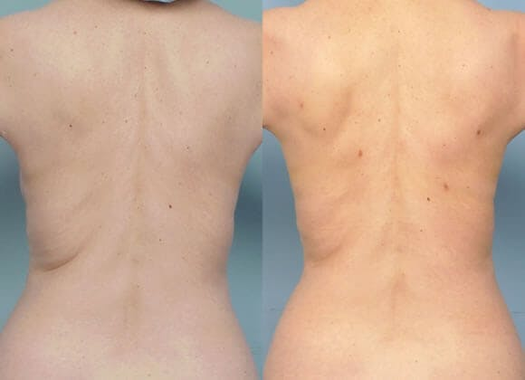 Liposuction Gallery - Patient 42063896 - Image 1