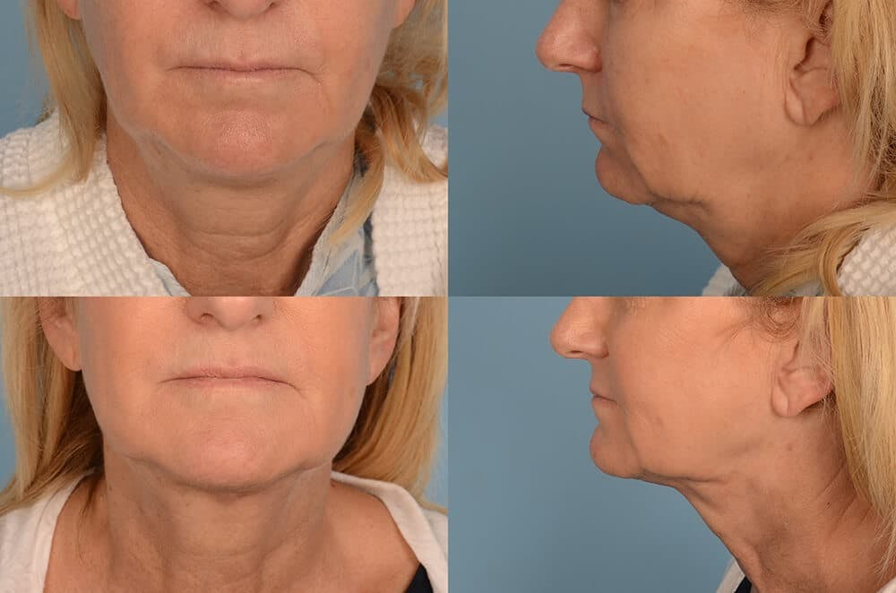 Liposuction Gallery - Patient 42063897 - Image 1