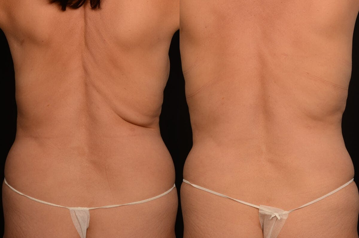 CoolSculpting Gallery - Patient 42063908 - Image 1