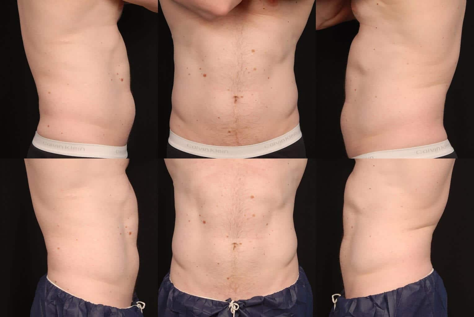CoolSculpting Gallery - Patient 42063910 - Image 2