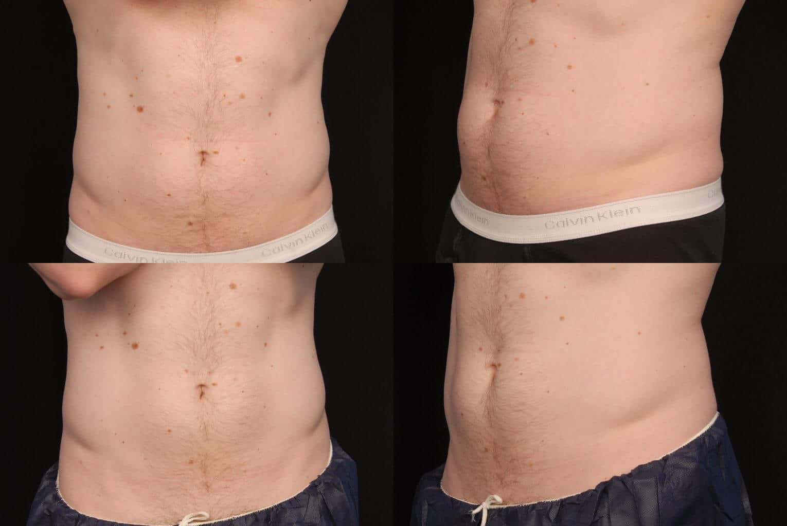 CoolSculpting Gallery - Patient 42063910 - Image 1