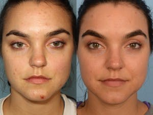 Acne Treatment Gallery - Patient 42065724 - Image 1