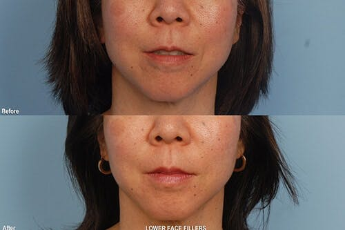 Lower Face Filler Gallery - Patient 42065748 - Image 1