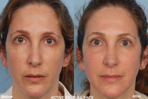 Active FX Laser Gallery - Patient 42065774 - Image 1