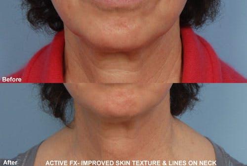 Active FX Laser Gallery - Patient 42065776 - Image 1