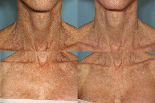 Active FX Laser Gallery - Patient 42065780 - Image 1
