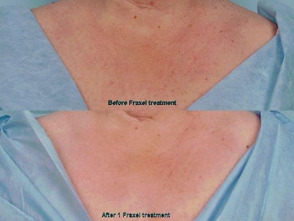 Fraxel Laser Gallery - Patient 42065793 - Image 1