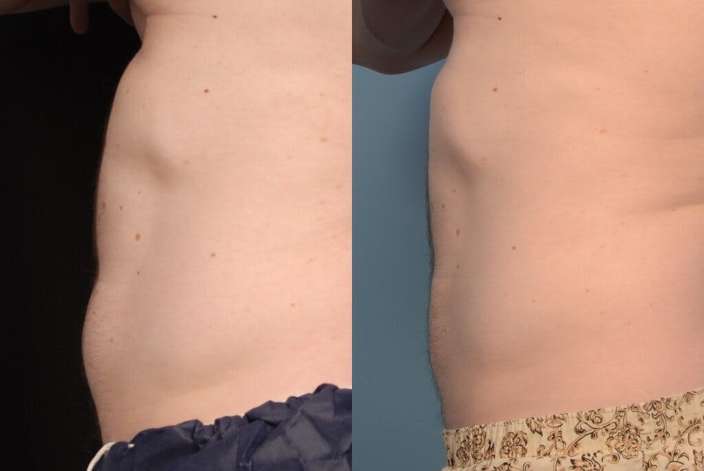 CoolSculpting Gallery - Patient 44232745 - Image 1