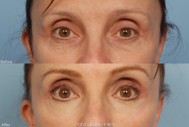 CO2 Laser Resurfacing Gallery - Patient 48369726 - Image 1