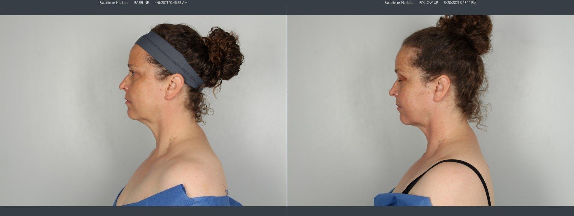 FaceTite & NeckTite Gallery - Patient 48369789 - Image 1