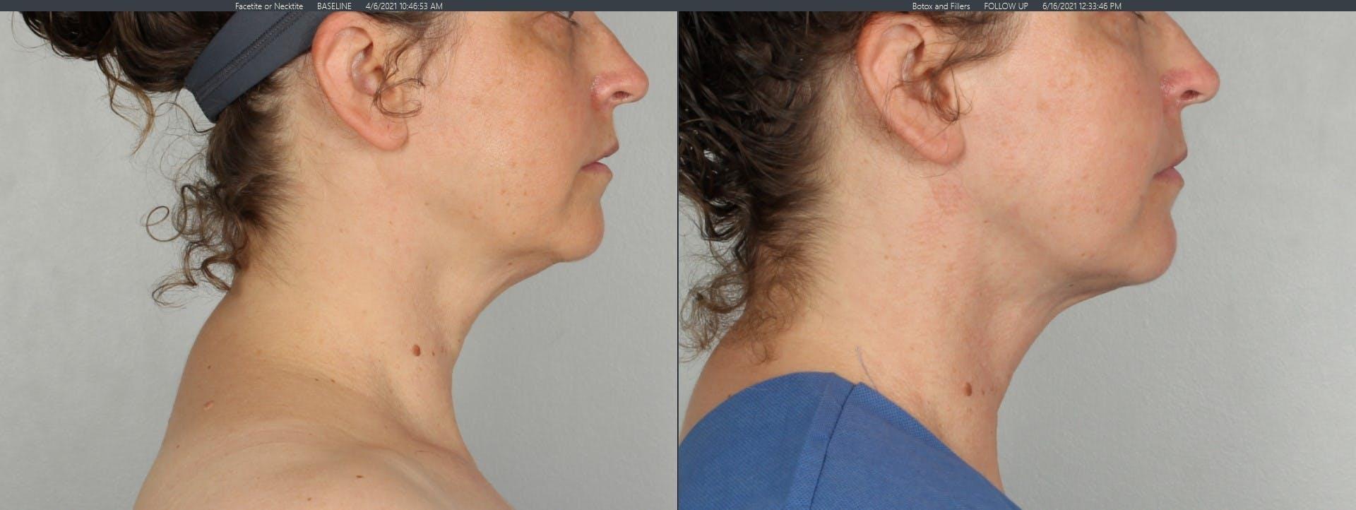 FaceTite & NeckTite Gallery - Patient 48369789 - Image 3