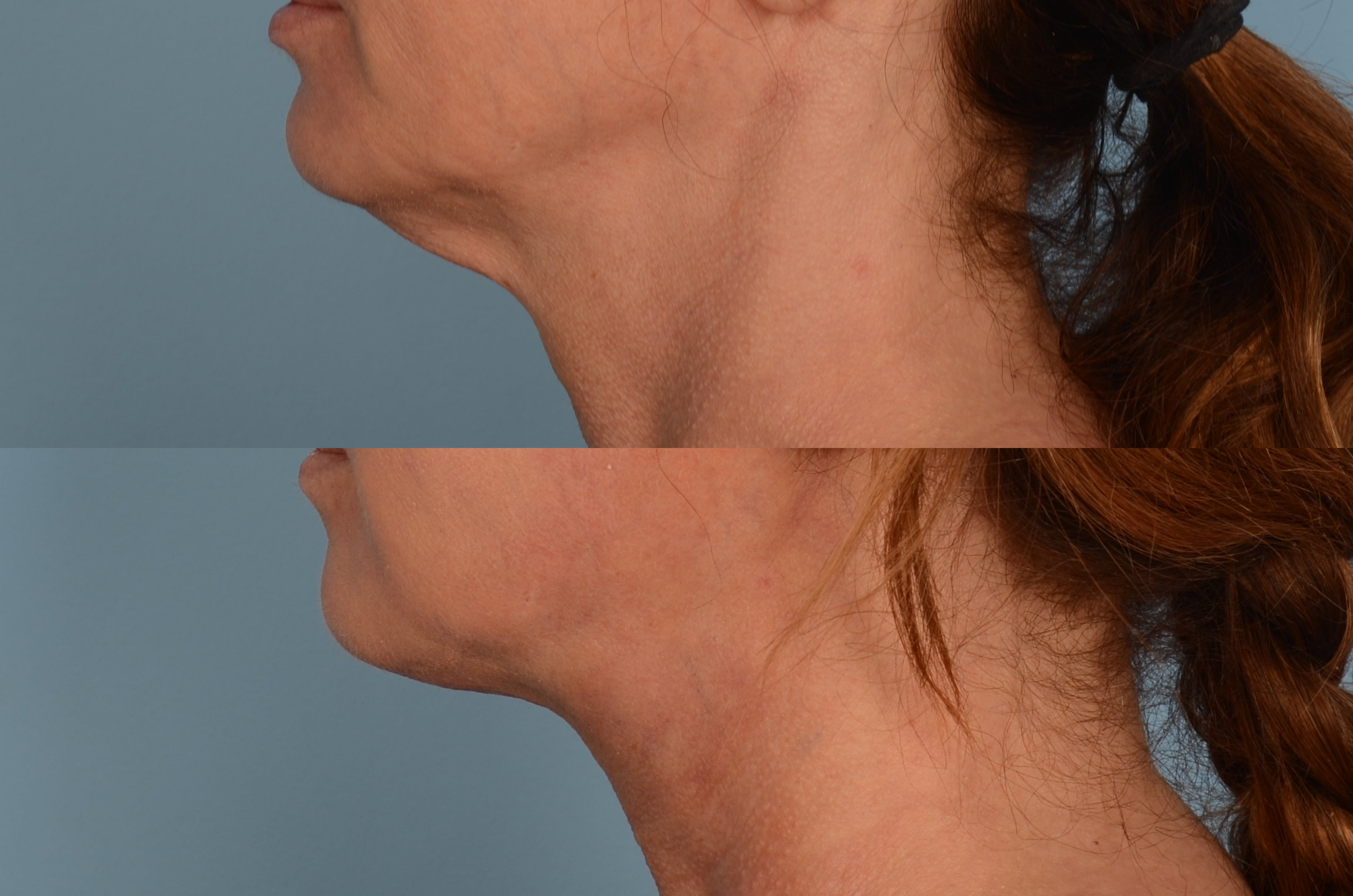 Thread Lift Gallery - Patient 48369801 - Image 1