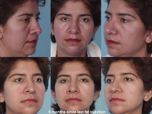 Fat Injections Gallery - Patient 48369862 - Image 1