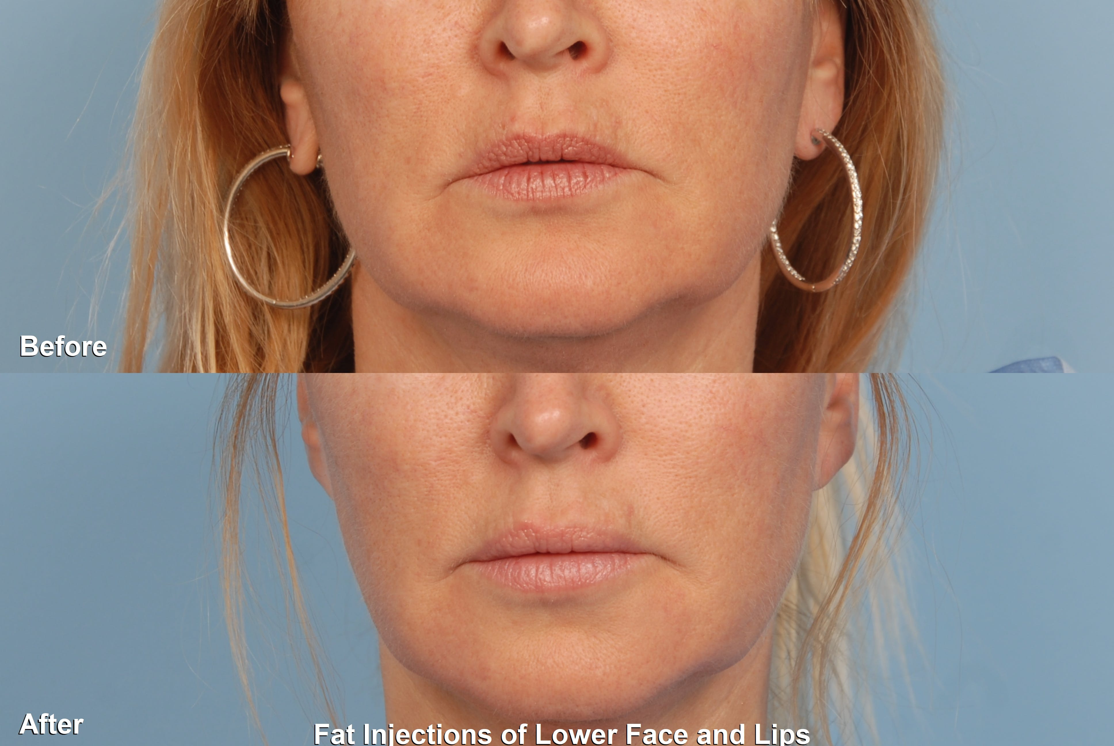 Fat Injections Gallery - Patient 48369888 - Image 1