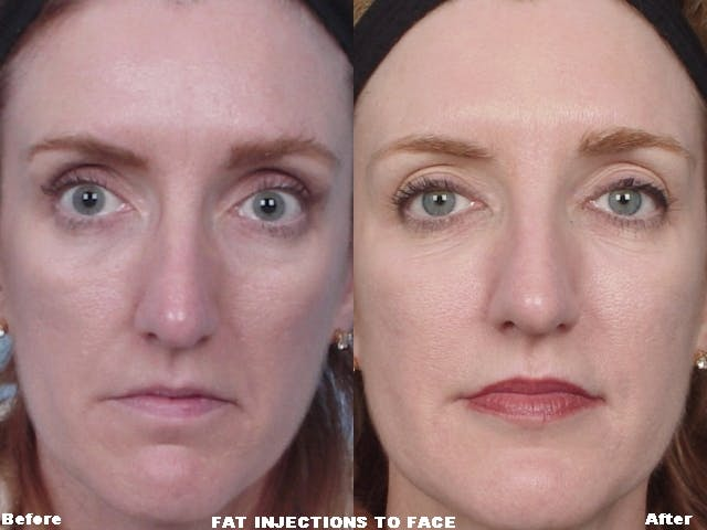 Fat Injections Gallery - Patient 48369900 - Image 1