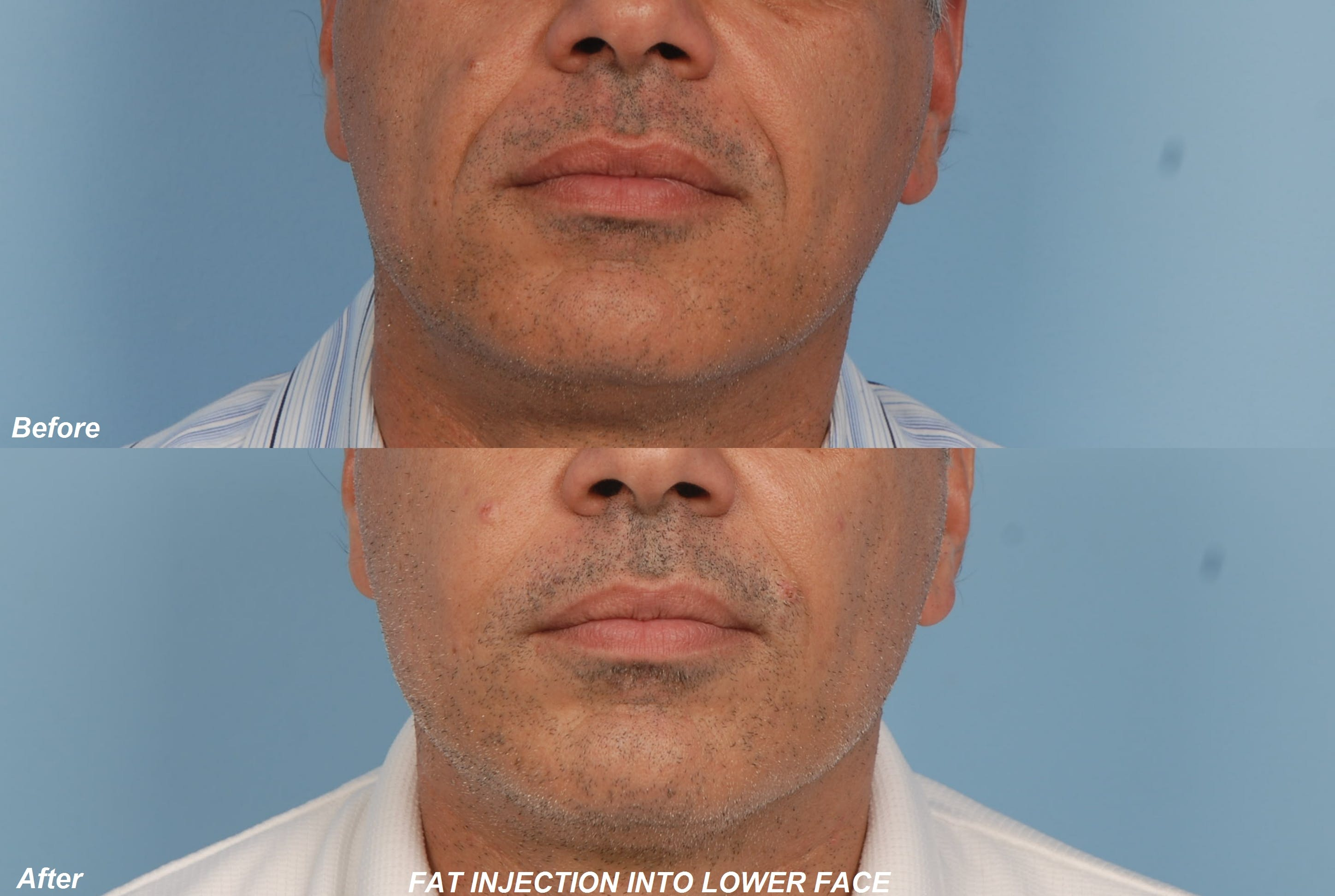 Fat Injections Gallery - Patient 48369901 - Image 1