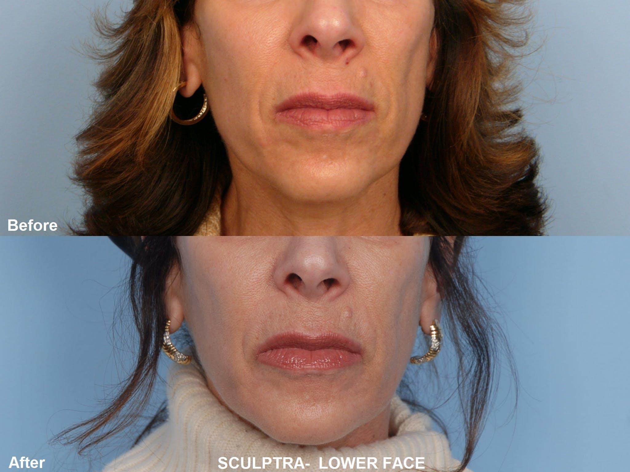 Sculptra Gallery - Patient 48370038 - Image 1