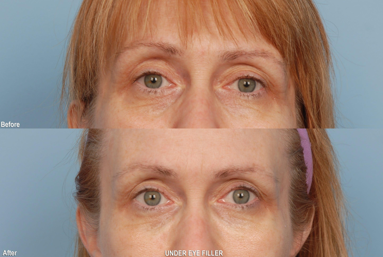 Under Eye Filler Gallery - Patient 48370076 - Image 1