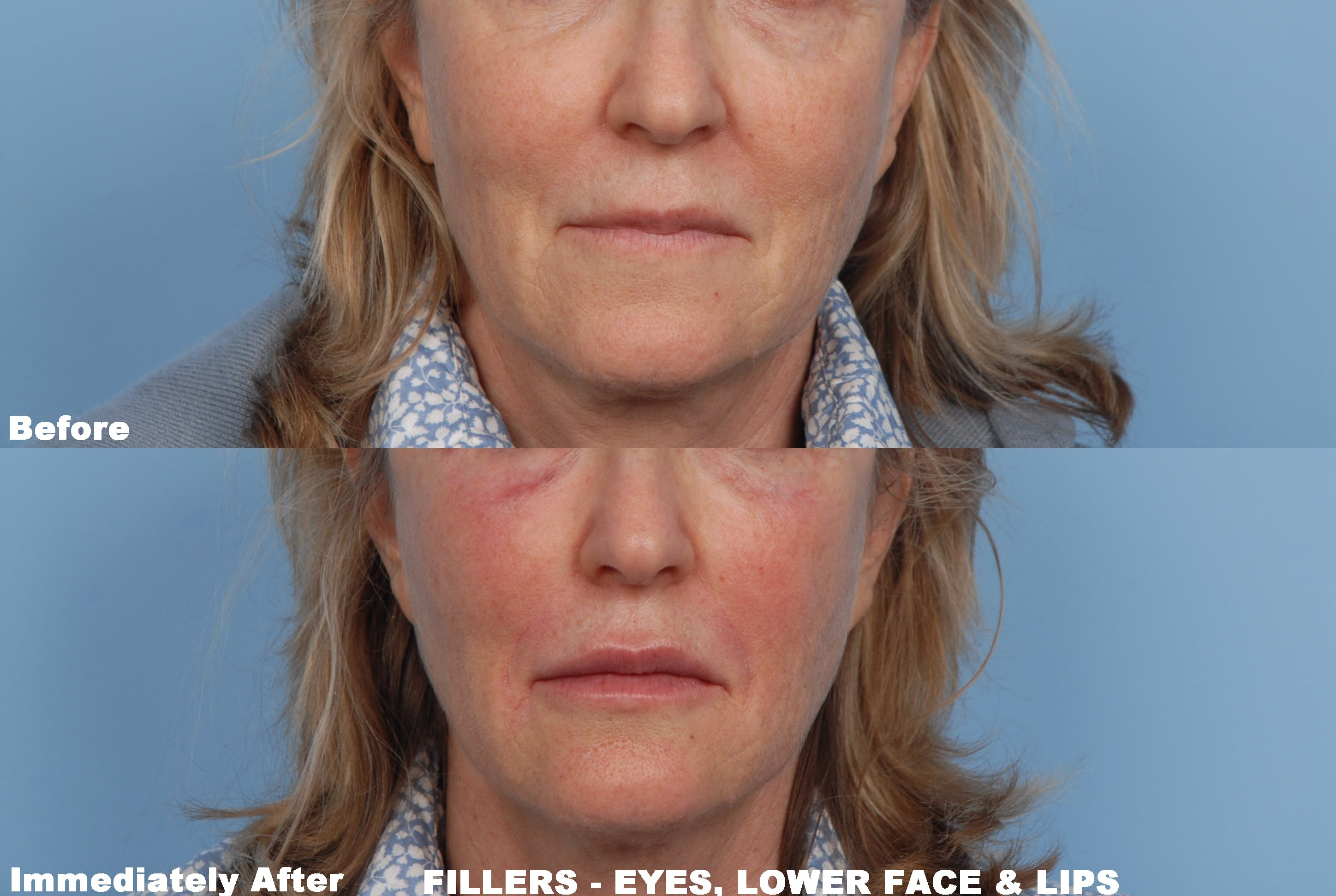 Lower Face Filler Gallery - Patient 48370088 - Image 1