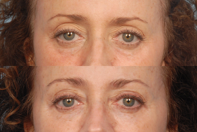Under Eye Filler Gallery - Patient 48370095 - Image 1