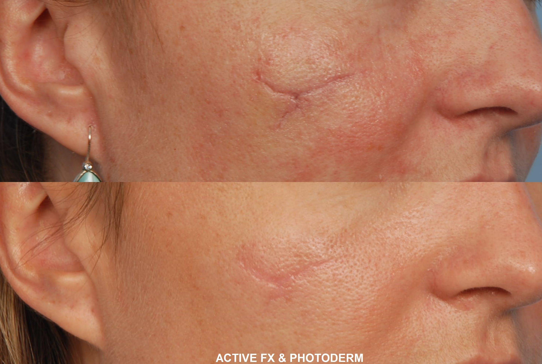 Active FX Laser Gallery - Patient 48370126 - Image 1