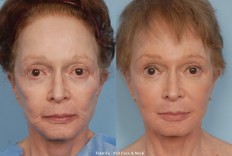 Active FX Laser Gallery - Patient 48370198 - Image 1