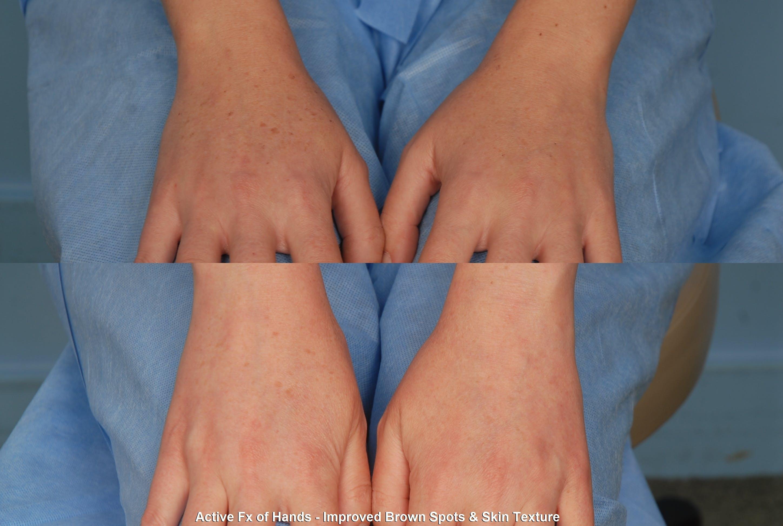 Active FX Laser Gallery - Patient 48370199 - Image 1