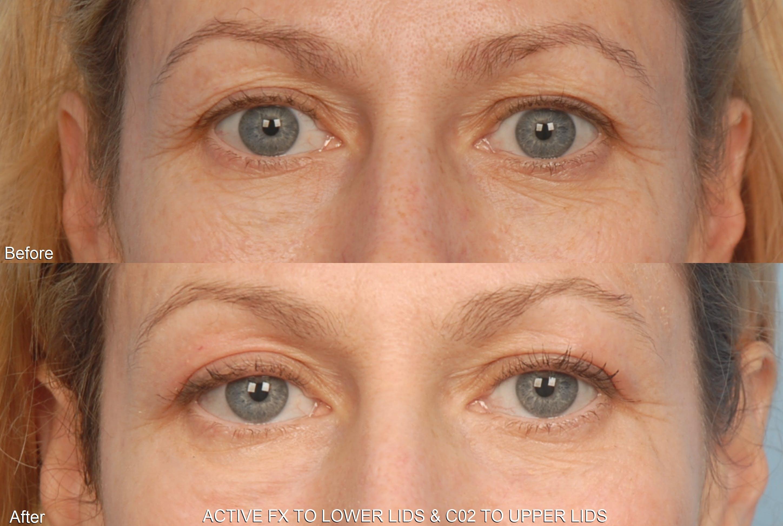 Active FX Laser Gallery - Patient 48370200 - Image 1