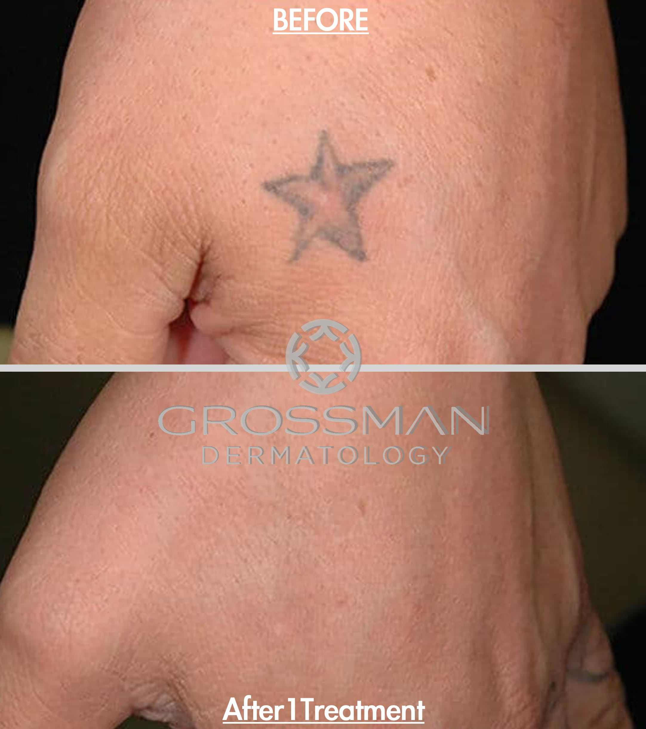 Laser Tattoo Removal Gallery - Patient 48639781 - Image 1