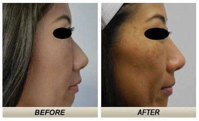 Before-and-after photos of an Asian rhinoplasty case in Honolulu with Dr. Shim Ching.