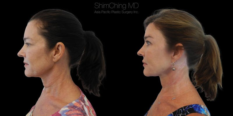 Before and after Facelift surgery in Honolulu with Dr. Shim Ching