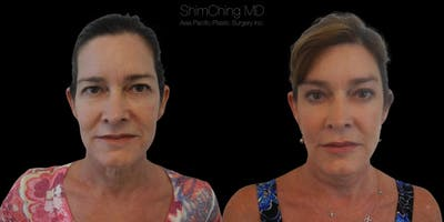 Facelift Gallery - Patient 38290564 - Image 2