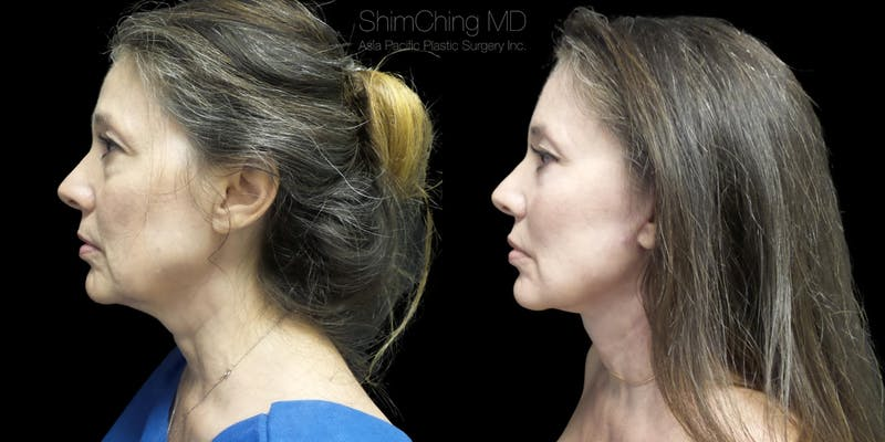 Before and after Facelift surgery in Honolulu Hawaii with Dr. Shim Ching