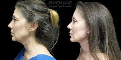 Facelift Gallery - Patient 38290567 - Image 1
