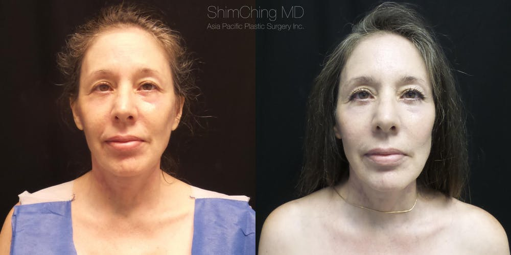 Facelift Gallery - Patient 38290567 - Image 2