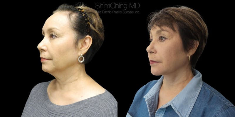 Before and after Facelift surgery in Hawaii with Dr. Shim Ching